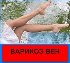 Красные вены на ногах