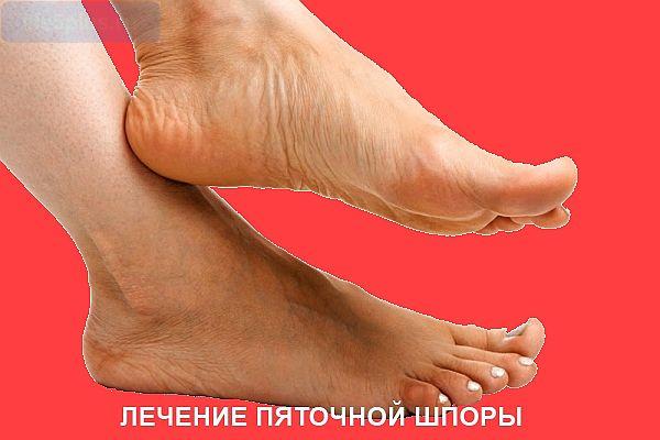 Как лечить шпору на ноге в домашних условиях