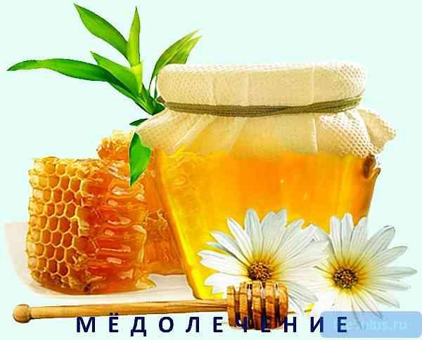 """alt=""""Лечение мёдом"""""""