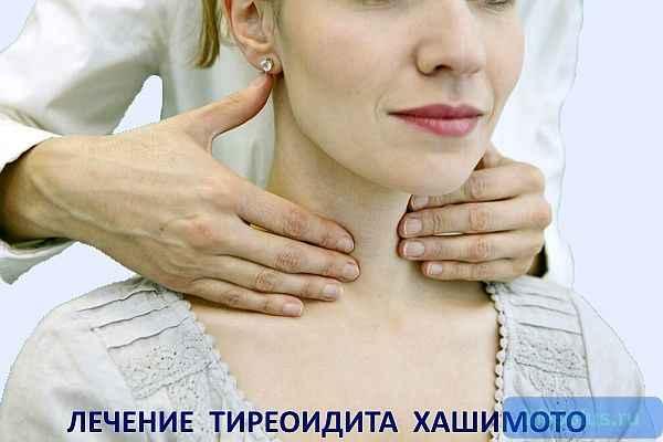 "alt=""Лечение тиреоидита Хашимото"""
