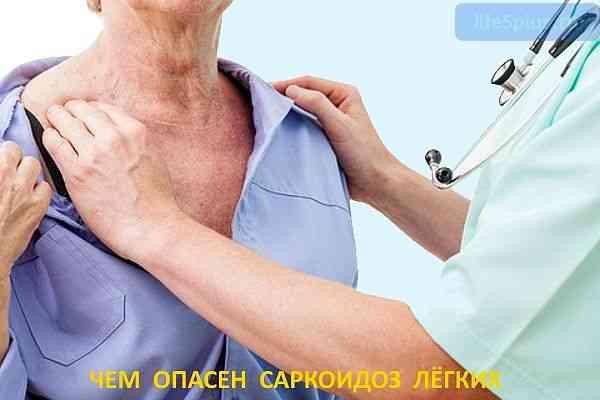 """alt=""""Саркоидоз лёгких"""""""