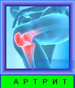 Причиной возникновения артритов могут быть , как инфекции , а также травмы , нарушение обмена веществ , расстройства нервов , нехватка витаминов в организме человека .