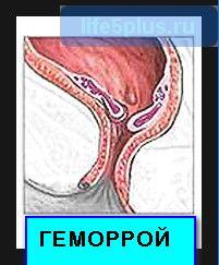 Узлы геморройного заболевания возникают как снаружи , так и внутри кишечного тракта .