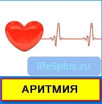 aritmia1