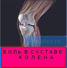 """alt="""" боль в суставе колена """""""