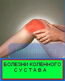 "alt=""лечение болезни коленного сустава """