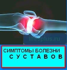 """alt ="""" симптомы болезни суставов """""""