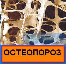 """alt = """" остеопороз костей """""""