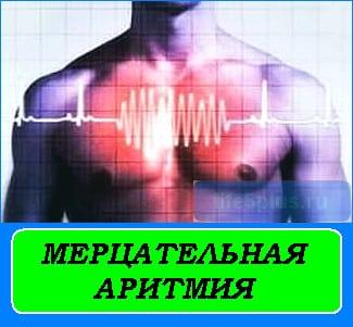 """alt=""""мерцательная аритмия сердца"""""""