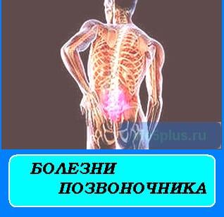 "alt=""болезни позвоночника"""