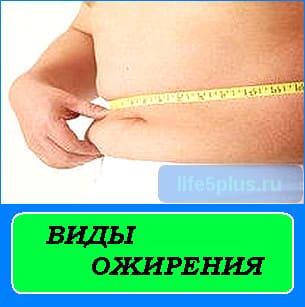 """alt=""""виды ожирения"""""""