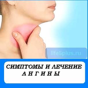 """alt=""""симптомы и лечение ангины"""""""