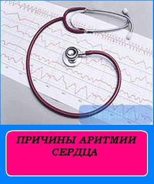"""alt=""""причины аритмии сердца"""""""