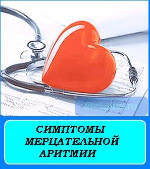 """alt=""""симптомы мерцательной аритмии"""""""