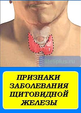 """alt=""""признаки заболевания щитовидной железы"""""""