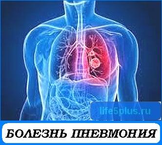 """alt=""""болезнь пневмония"""""""