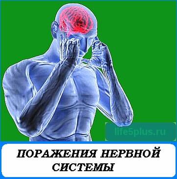 """alt=""""поражения нервной системы"""""""