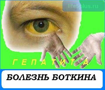 """alt=""""Болезнь Боткина"""""""