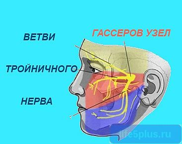 "alt=""Невралгия тройничного нерва"""