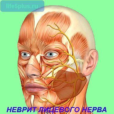 """alt=""""Неврит лицевого нерва"""""""