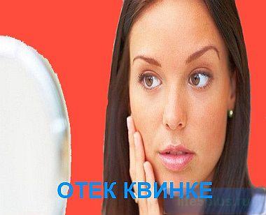 "alt=""Отек Квинке"""