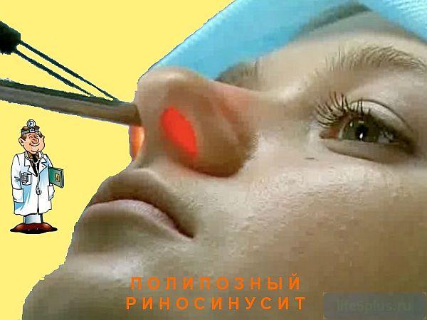 """alt=""""Лечение полипов носа"""""""