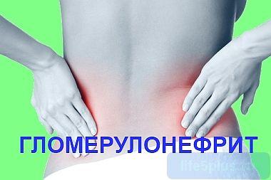 Воспаление почек: симптомы гломерулонефрита, осложнения, диета |