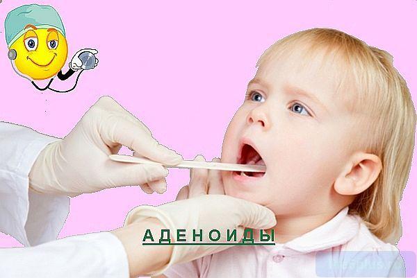 "alt=""Аденоиды носа"""