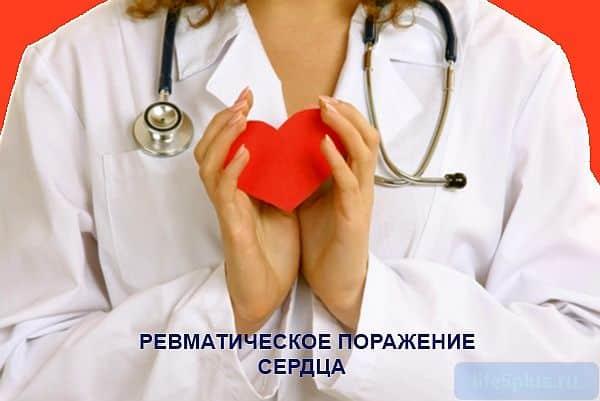 """alt=""""Ревматизм сердца"""""""