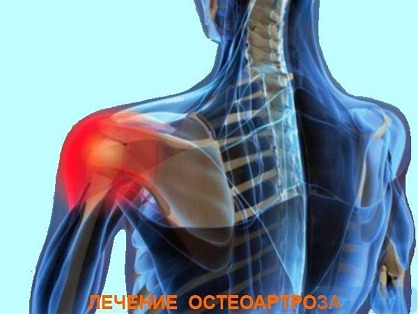 Остеоартроз лечение народными средствами