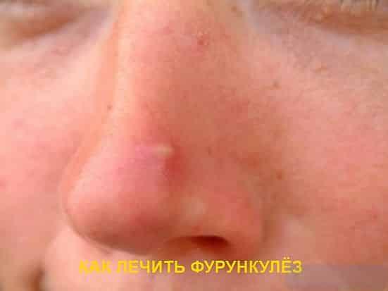 "alt=""Лечение фурункулёза"""