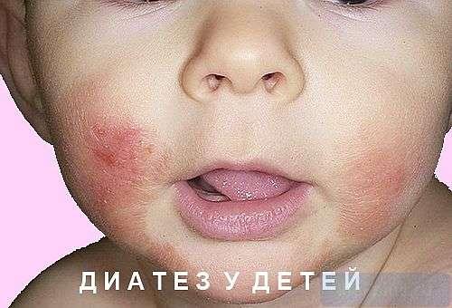 """alt=""""Экссудативный диатез"""""""