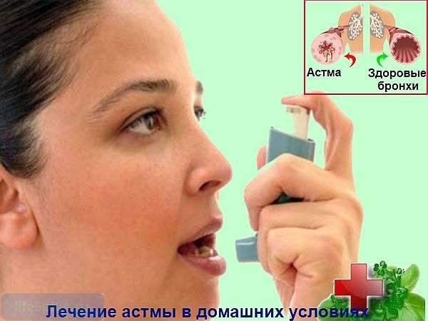 """alt=""""Лечение астмы народными средствами"""""""