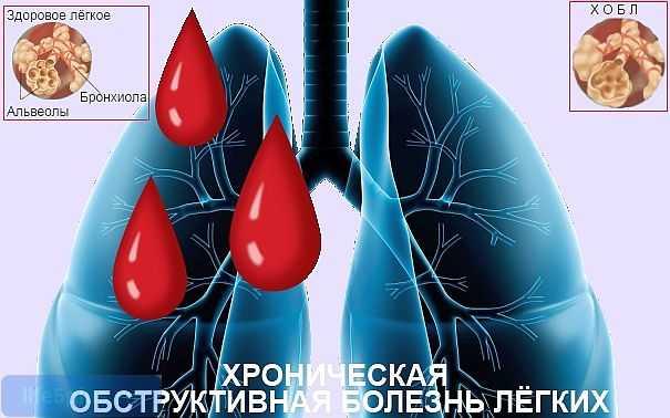 """alt=""""Хроническая обструктивная болезнь лёгких"""""""