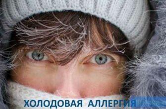 """alt=""""Аллергия на холод"""""""