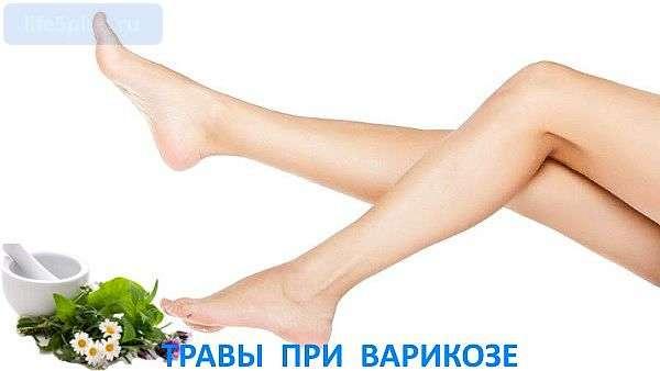 """alt=""""Лечение варикоза народными средствами"""""""