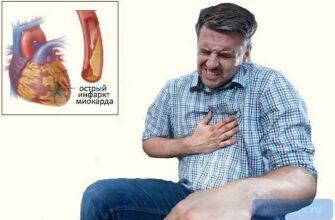 """alt=""""Острый инфаркт миокарда"""""""