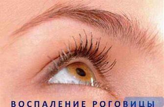 """alt=""""Кератит глаза"""""""