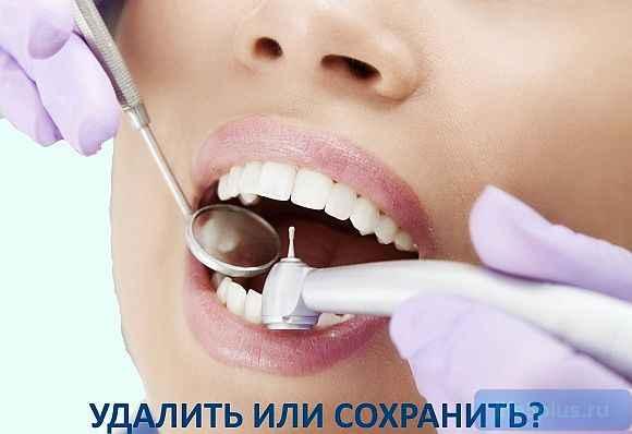 """alt=""""Удалять или лечить зуб"""""""