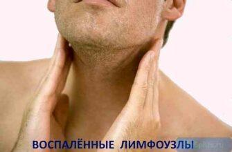 """alt=""""Воспаление лимфатических узлов"""""""