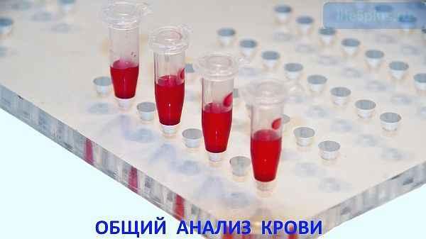 "alt=""Расшифровка клинического анализа крови"""