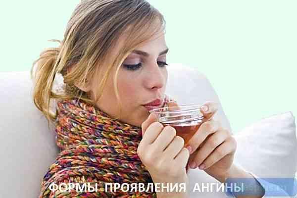 """alt=""""Виды ангины"""""""