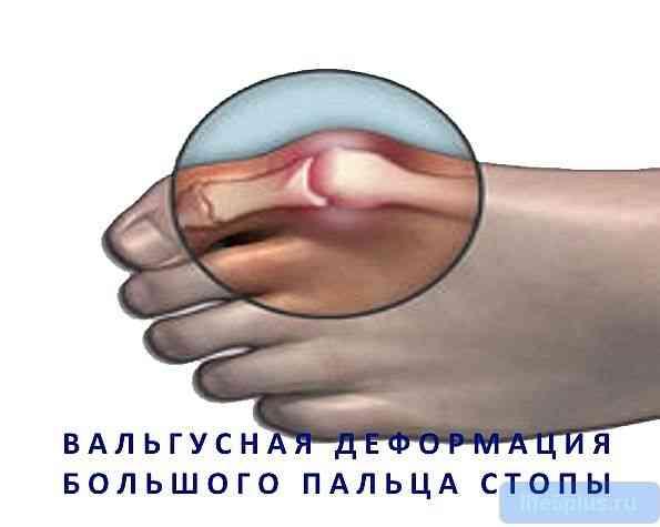 """alt=""""Шишка на большом пальце ноги"""""""