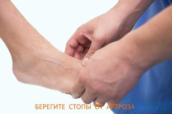 "alt=""Артроз стопы"""