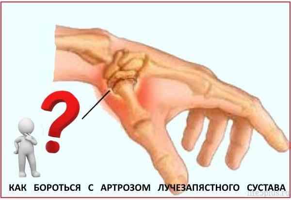 Хруст в суставе кисти от воспаления суставов таблетки
