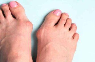 Шишка на большом пальце ноги